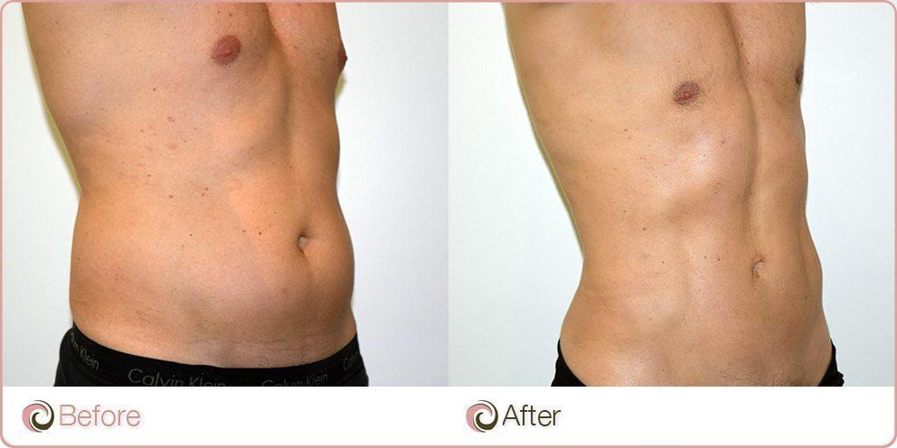 Советы: как подтянуть и восстановить лишнюю кожу после