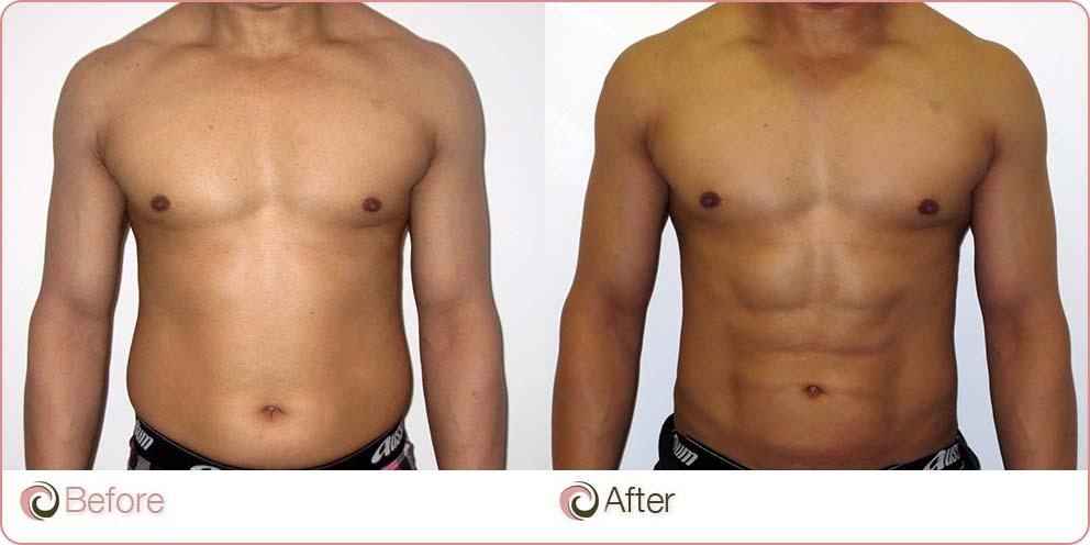 VASER Hi-Def Liposuction before and after photo