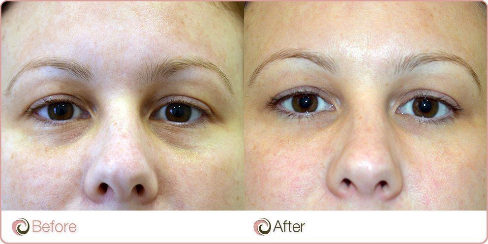 Botox Eyebrow Lift Cost