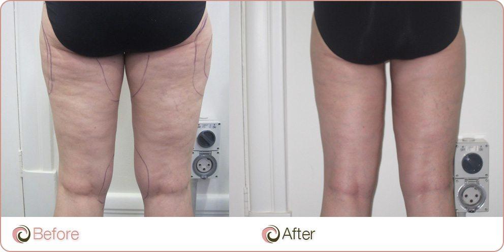 BM-Legs-2