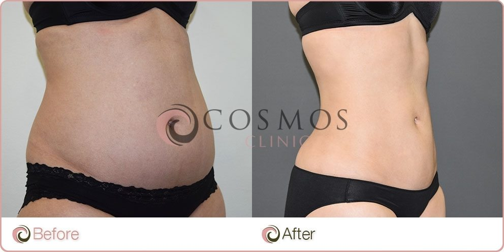 Female Tummy Liposuction Before & After