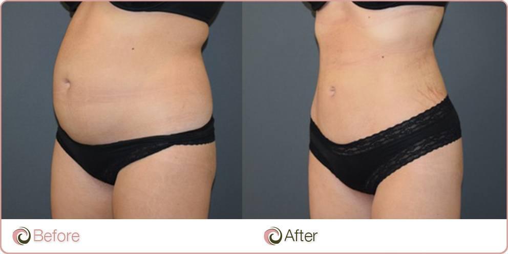 Vaser Liposuction Cosmos Clinic