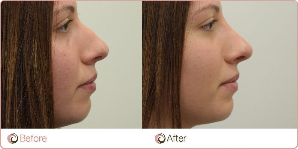 Non Surgical Nose Job (Reshaping) & Costs | Sydney, Gold
