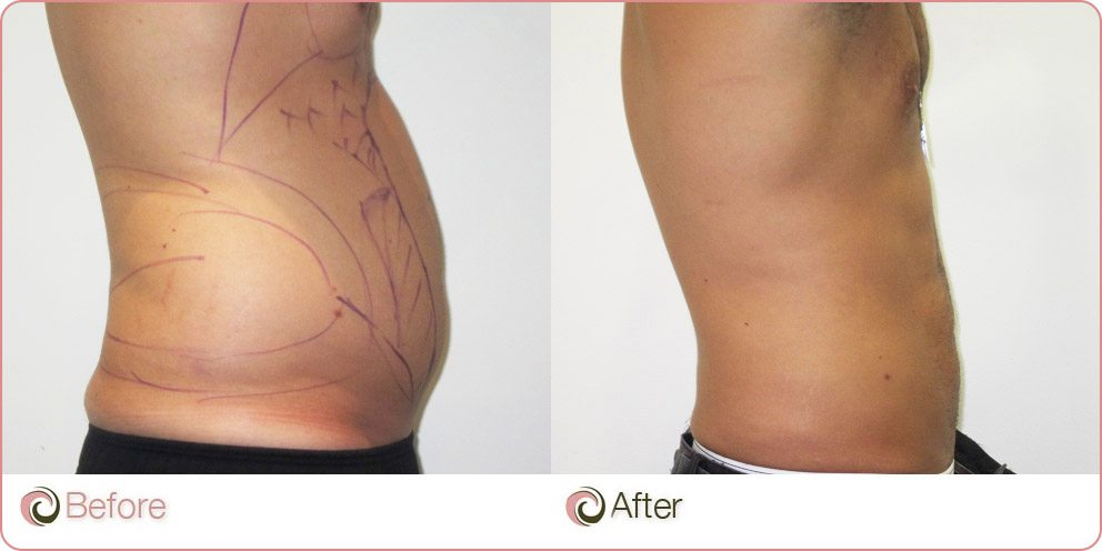 vaser liposuction before & after