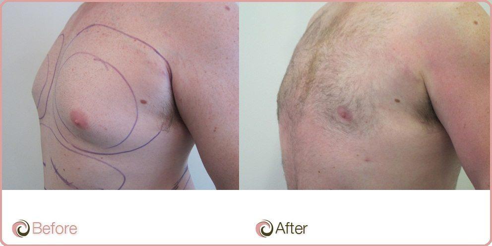 Man Boobs Liposuction
