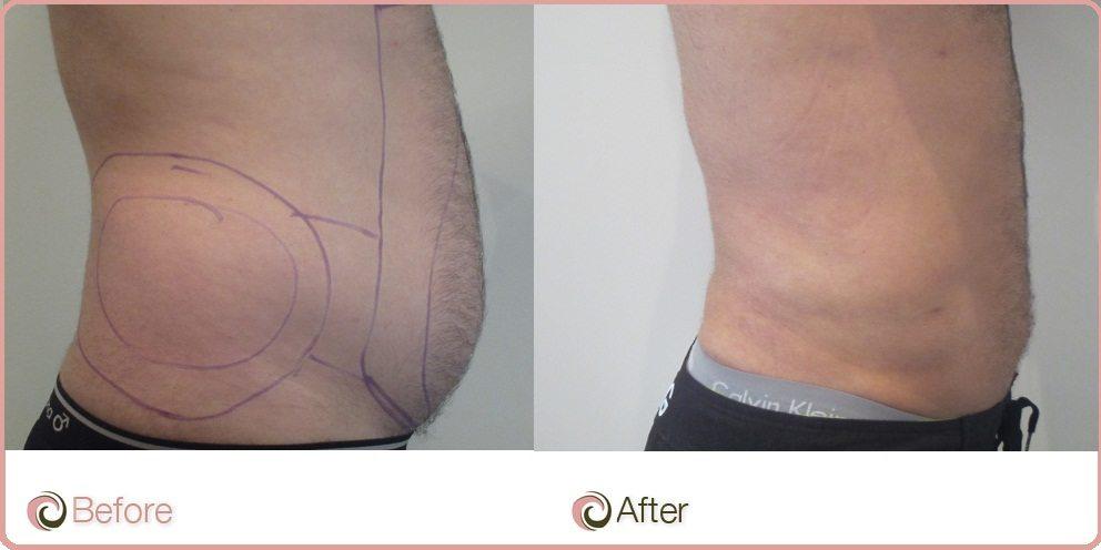 Tummy Liposuction