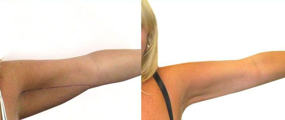 Arm Liposuction image gallery