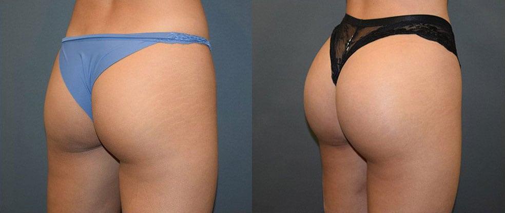 Brazilian Butt Lift image gallery