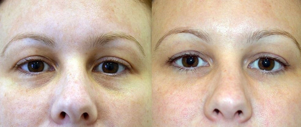 Brow Lift & Costs | Sydney, Gold Coast, Canberra & Adelaide