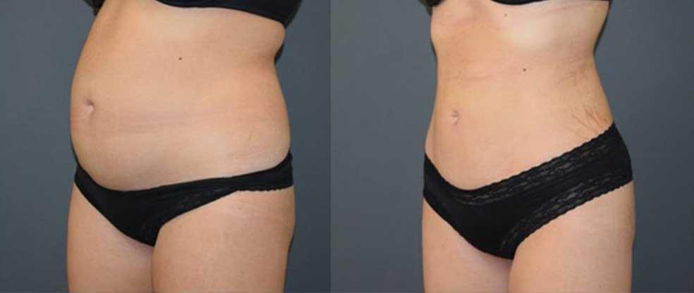 Female Tummy Liposuction image gallery