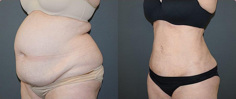 Mega Liposuction image gallery