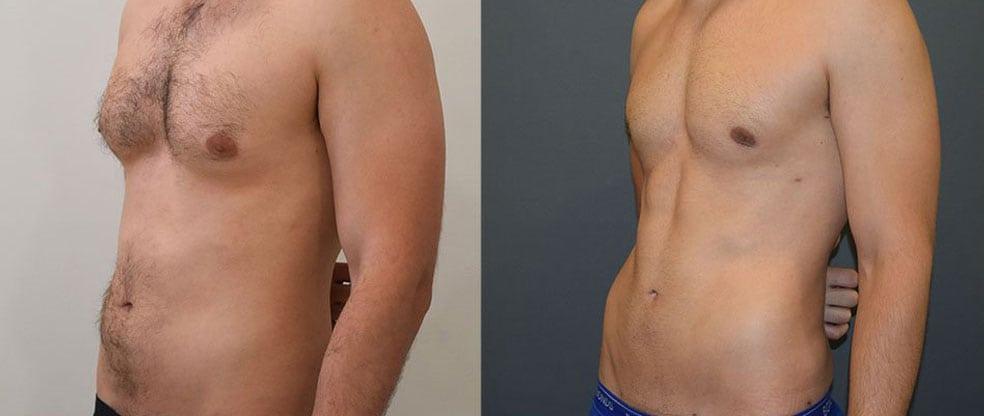 Male Vaser Hi Definition Liposuction image gallery