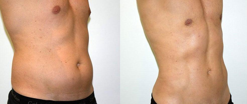 Male Vaser Liposuction image gallery