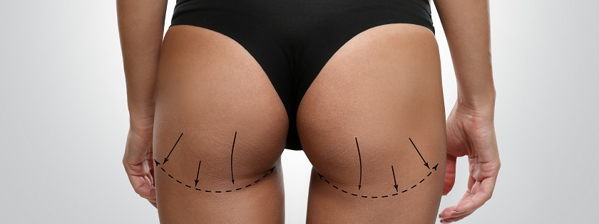 Young female body with marks for plastic operation, gray background. Liposuction concept