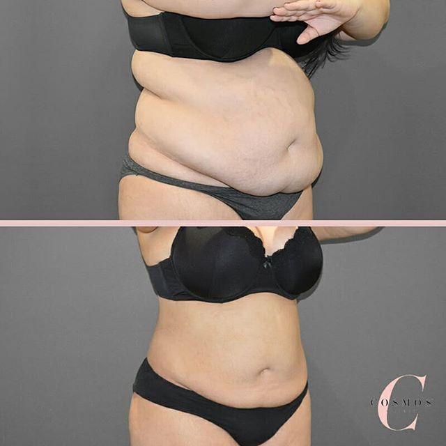 Liposuction over Tummy Tuck